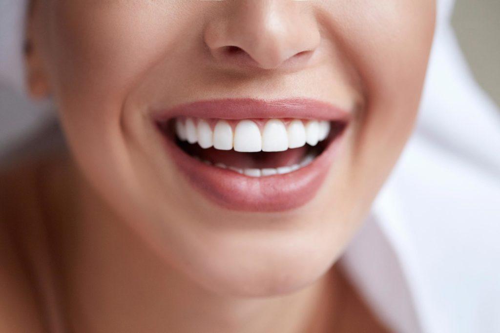 teeth whiteners